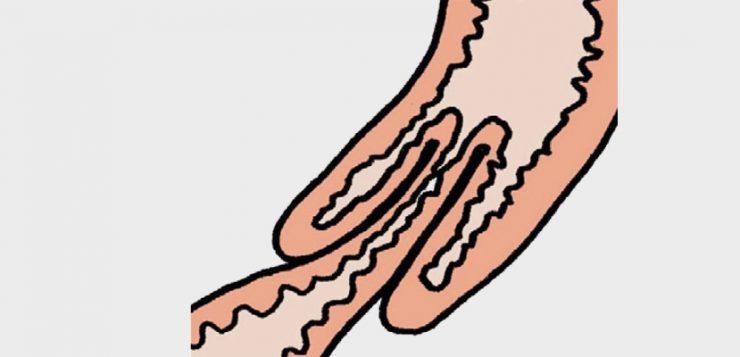 Darmverschluss Zeichnung